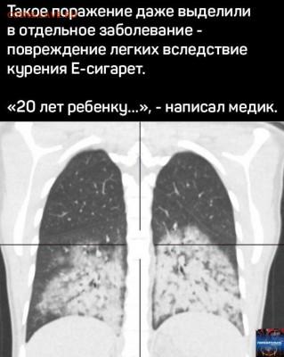 Электронные сигареты помогает бросить курить или нет? - 2nxDztERCh4